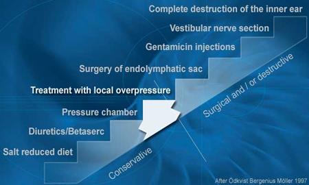 Ménière's Disease Treatment Overview
