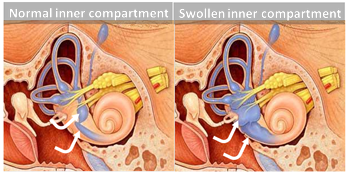 Ménière's Inner Swelling
