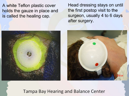 Gauze and Healing Cap