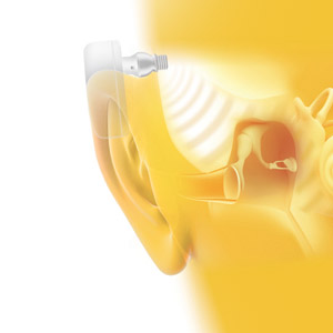 How a Bone Anchored Hearing Aid Works